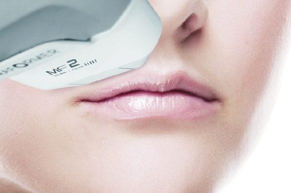 ULTRAFORMER® III – nieinwazyjny lifting twarzy, szyi